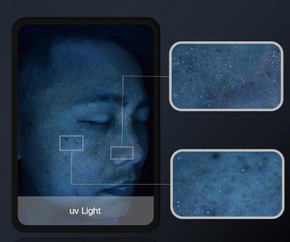 анализ кожи